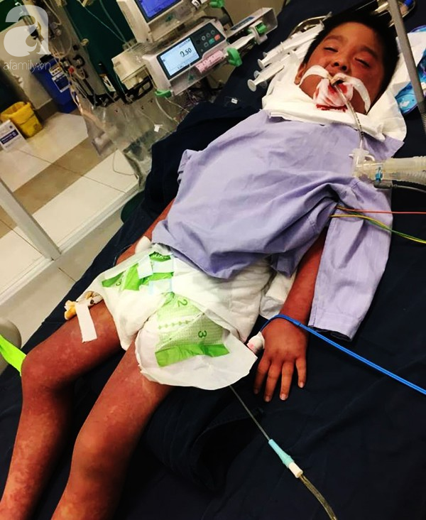 Hà Nội: Bé trai 7 tuổi đang khỏe mạnh bỗng hôn mê vì suy đa tạng, nhiễm trùng máu sau trận sốt cao - Ảnh 4.