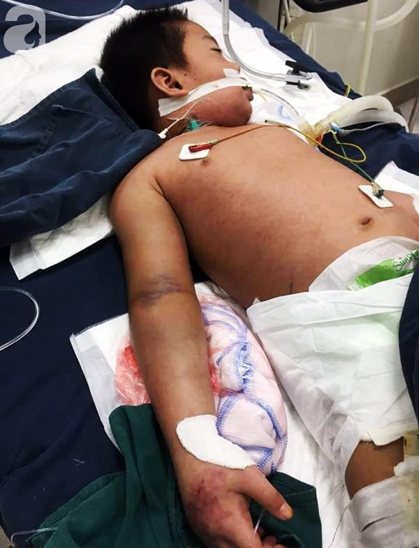 Hà Nội: Bé trai 7 tuổi đang khỏe mạnh bỗng hôn mê vì suy đa tạng, nhiễm trùng máu sau trận sốt cao - Ảnh 2.