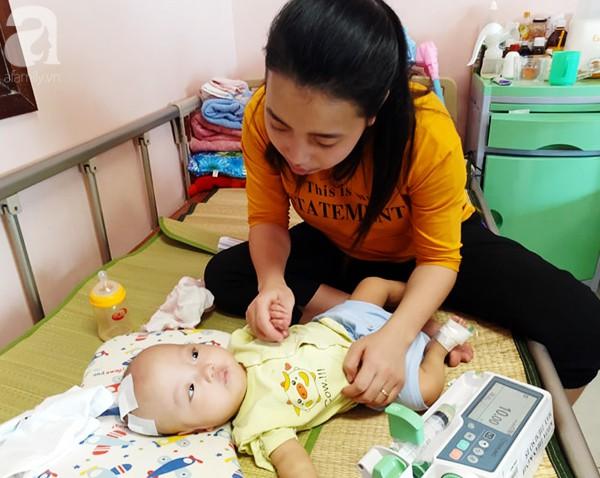 Người mẹ trẻ quỳ gối xin nhà hảo tâm cứu con bị não úng thủy: Con em có cơ hội được sống rồi - Ảnh 1.