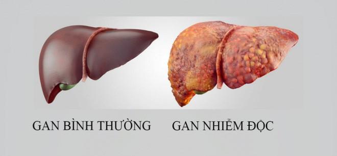 Đông y coi đây là 5 thực phẩm vua giải độc gan tự nhiên: Loại bỏ chất độc làm hỏng gan - Ảnh 1.