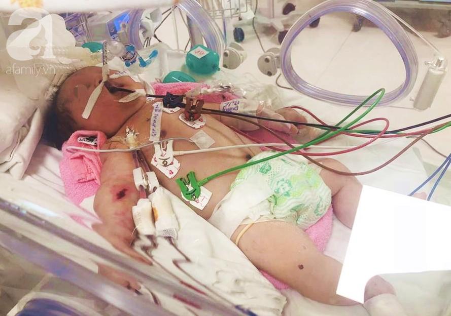Đau lòng: Căn bệnh hiểm ác khiến người phụ nữ mất con đầu lòng, con thứ 2 ngưng tim, ngưng thở chỉ sau 1 ngày chào đời - Ảnh 3.