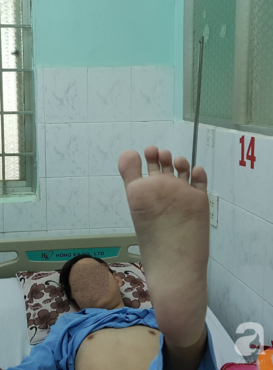 Làm việc kỳ lạ này, các bác sĩ Sài Gòn đã cứu tân binh 21 tuổi tiên lượng tử vong vì căn bệnh tấn công trực tiếp vào não - Ảnh 3.