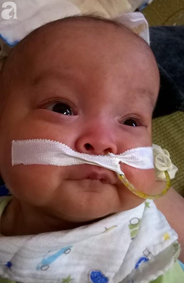Sinh ra nặng chỉ 1kg, bé trai 14 tháng tuổi đau đớn chống chọi với căn bệnh quái ác   - Ảnh 7.