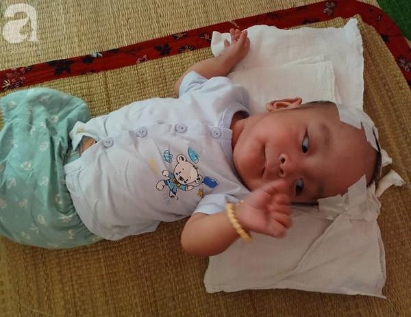Sinh ra nặng chỉ 1kg, bé trai 14 tháng tuổi đau đớn chống chọi với căn bệnh quái ác   - Ảnh 3.