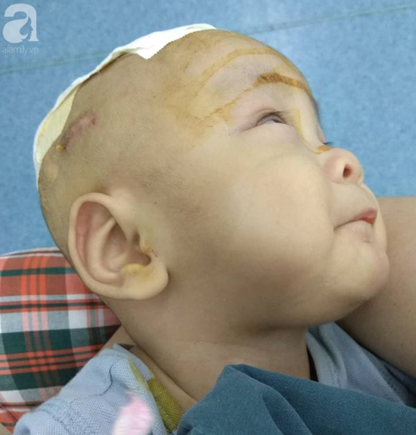 Sinh ra nặng chỉ 1kg, bé trai 14 tháng tuổi đau đớn chống chọi với căn bệnh quái ác   - Ảnh 4.