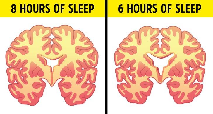 Đây là 7 hậu quả mà cơ thể phải đối mặt nếu ngày nào cũng thức rất khuya rồi lại dậy rất sớm - Ảnh 9.