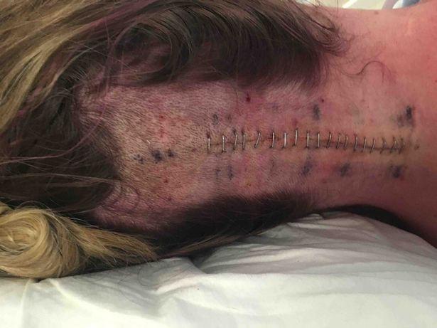 Bị đau đầu và uống thuốc giảm đau không khỏi, người phụ nữ đi khám thì nhận được hung tin mình chỉ còn 24 giờ để sống - Ảnh 3.