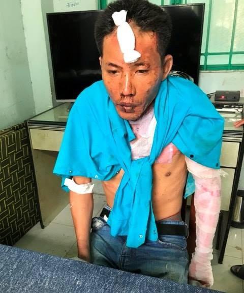 Chồng dùng xăng đốt vợ và hai con riêng ở Đồng Nai: Hai bé gái tử vong, mẹ bỏng nặng - Ảnh 3.