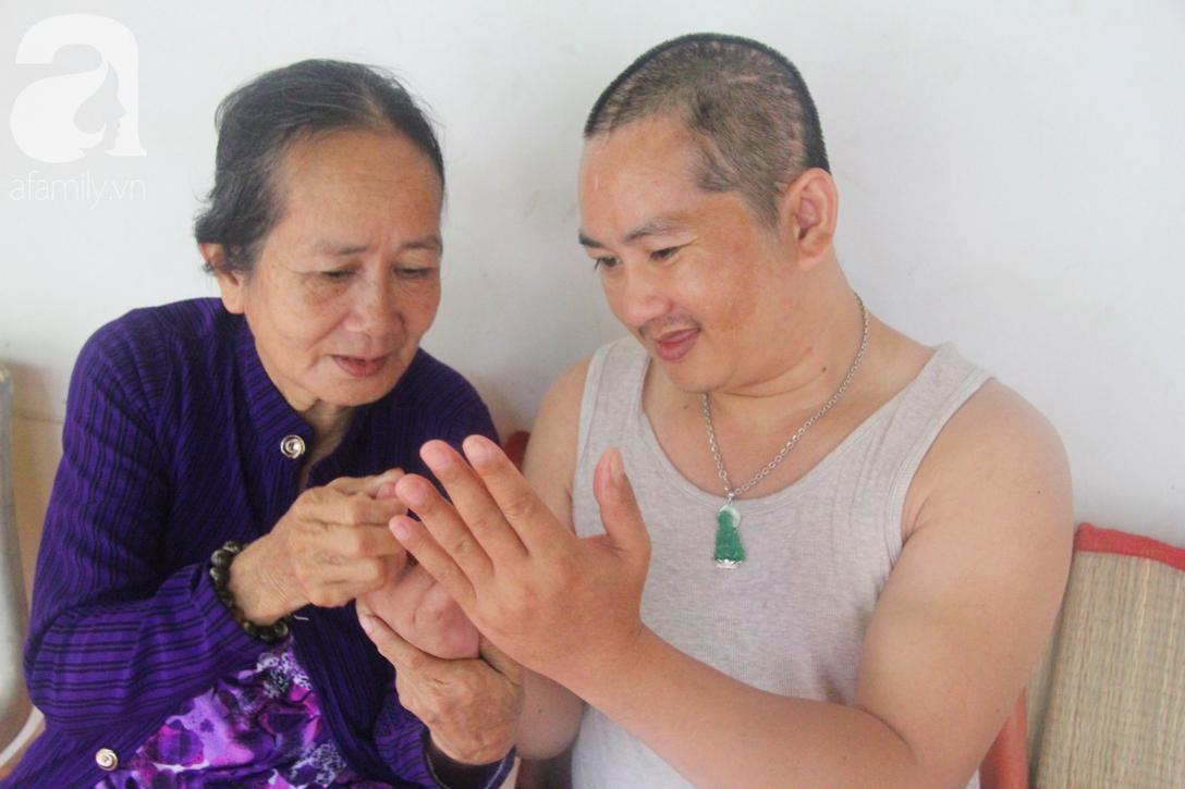 Xót cảnh người mẹ già còng lưng, dìu đứa con trai méo đầu đến bệnh viện mà không đủ tiền để chữa trị - Ảnh 5.