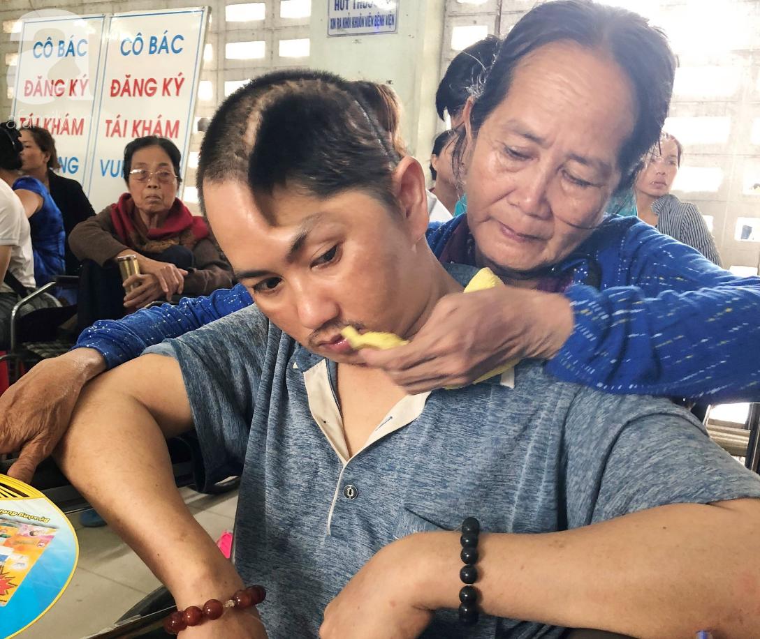 Xót cảnh người mẹ già còng lưng, dìu đứa con trai méo đầu đến bệnh viện mà không đủ tiền để chữa trị - Ảnh 4.
