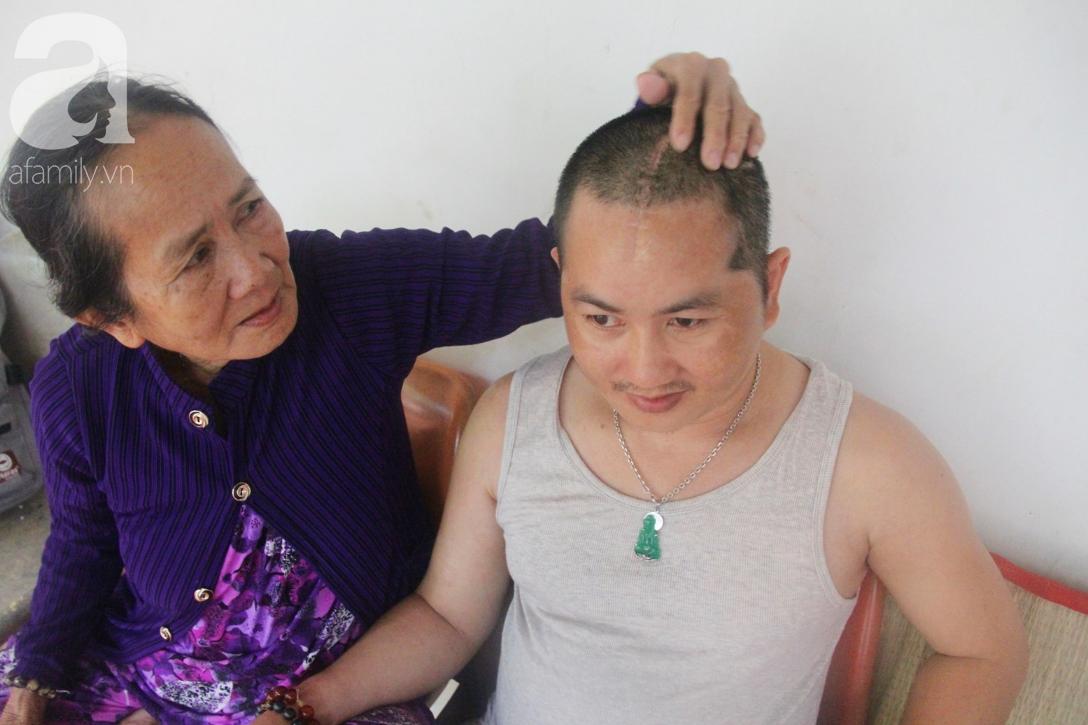 Xót cảnh người mẹ già còng lưng, dìu đứa con trai méo đầu đến bệnh viện mà không đủ tiền để chữa trị - Ảnh 8.