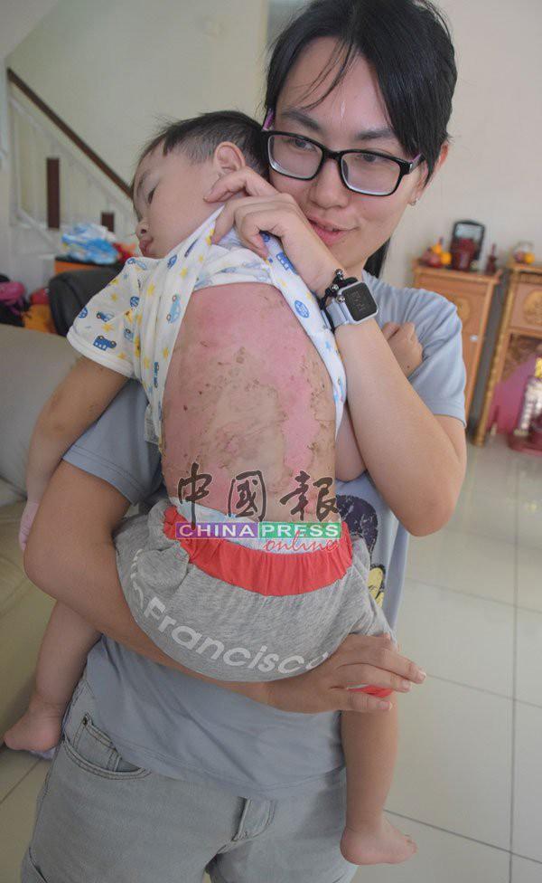 Cùng mẹ chơi dưới bếp, bé trai 2 tuổi bị bỏng nặng khi mặt bếp bất ngờ phát nổ, lời cảnh báo đáng sợ dành cho các phụ huynh - Ảnh 3.