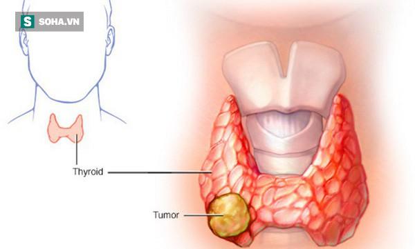 Thấy con gái có khối u ở cổ, từ chối mổ để tự hết, cha mẹ bàng hoàng khi biết là ung thư - Ảnh 3.