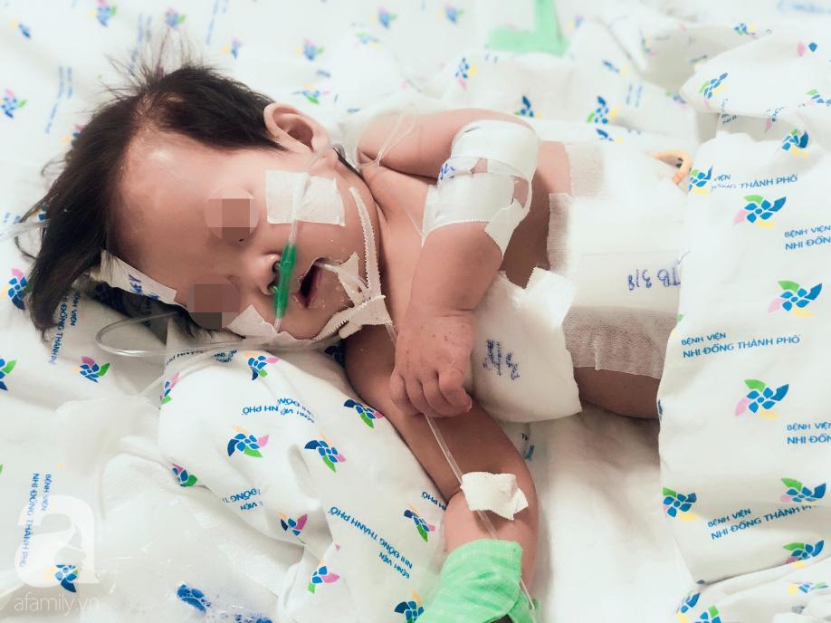 Cha mẹ sốc, bác sĩ choáng khi bé gái 10 tháng tuổi bị thủng thực quản, nhiễm 2 loại siêu vi khuẩn đề kháng tất cả kháng sinh - Ảnh 5.