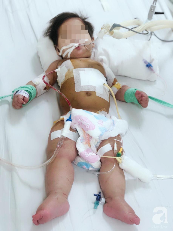 Cha mẹ sốc, bác sĩ choáng khi bé gái 10 tháng tuổi bị thủng thực quản, nhiễm 2 loại siêu vi khuẩn đề kháng tất cả kháng sinh - Ảnh 1.