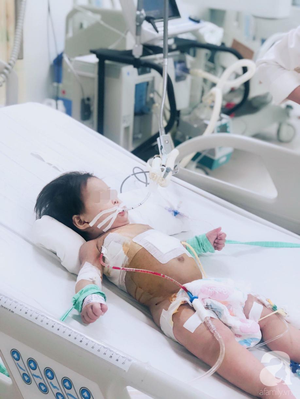 Cha mẹ sốc, bác sĩ choáng khi bé gái 10 tháng tuổi bị thủng thực quản, nhiễm 2 loại siêu vi khuẩn đề kháng tất cả kháng sinh - Ảnh 4.