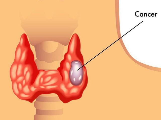 Khó nuốt khi ăn: Dấu hiệu bệnh ung thư rất nguy hiểm nhiều người thường bỏ qua - Ảnh 1.