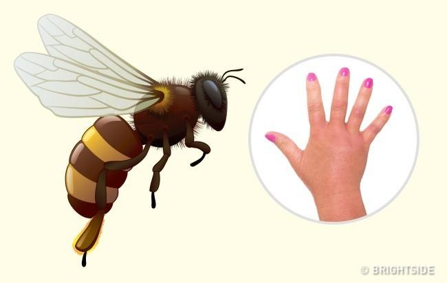 Hướng dẫn cách nhận biết bạn bị con côn trùng nào cắn qua hình dạng của 10 vết cắn - Ảnh 1.