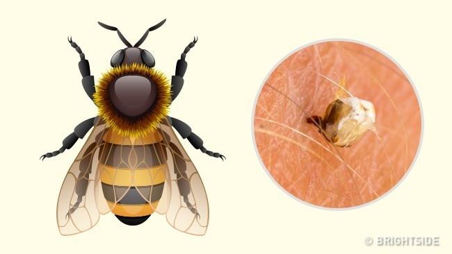 Hướng dẫn cách nhận biết bạn bị con côn trùng nào cắn qua hình dạng của 10 vết cắn - Ảnh 2.
