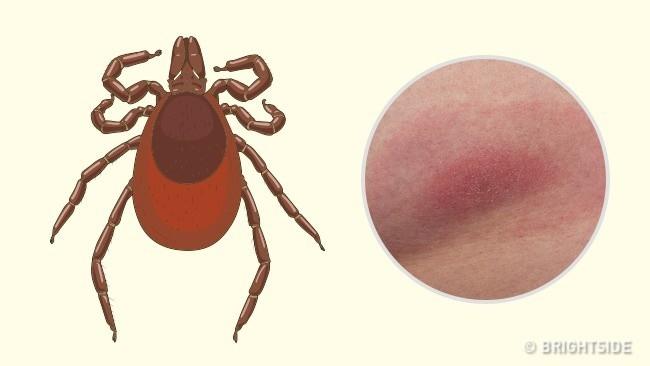 Hướng dẫn cách nhận biết bạn bị con côn trùng nào cắn qua hình dạng của 10 vết cắn - Ảnh 5.