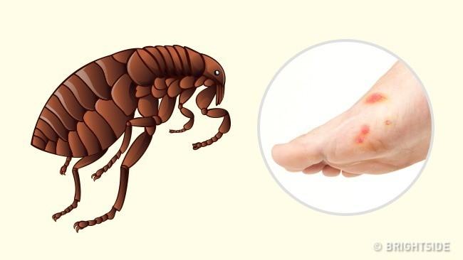 Hướng dẫn cách nhận biết bạn bị con côn trùng nào cắn qua hình dạng của 10 vết cắn - Ảnh 6.