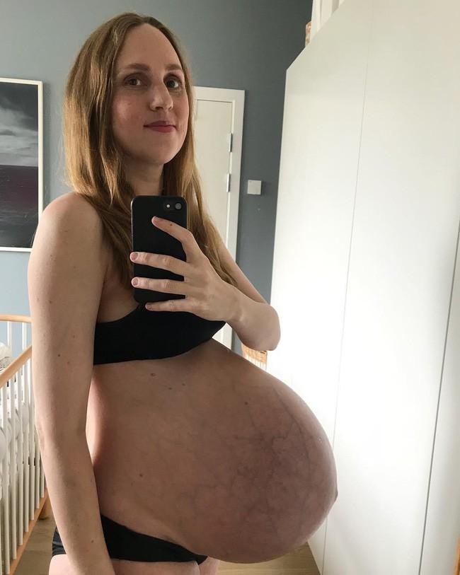 Mẹ bầu có chiếc bụng dài bất thường như muốn rớt xuống đã hạ sinh 3 thiên thần đáng yêu - Ảnh 2.
