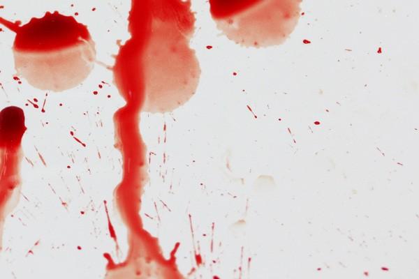 Mặt nạ ma cà rồng: Giới chuyên gia đang khuyến cáo người làm cần đi làm xét nghiệm HIV - Ảnh 4.