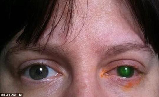 Mù mắt chỉ vì 20 phút đeo kính áp tròng xuống hồ bơi - Ảnh 1.