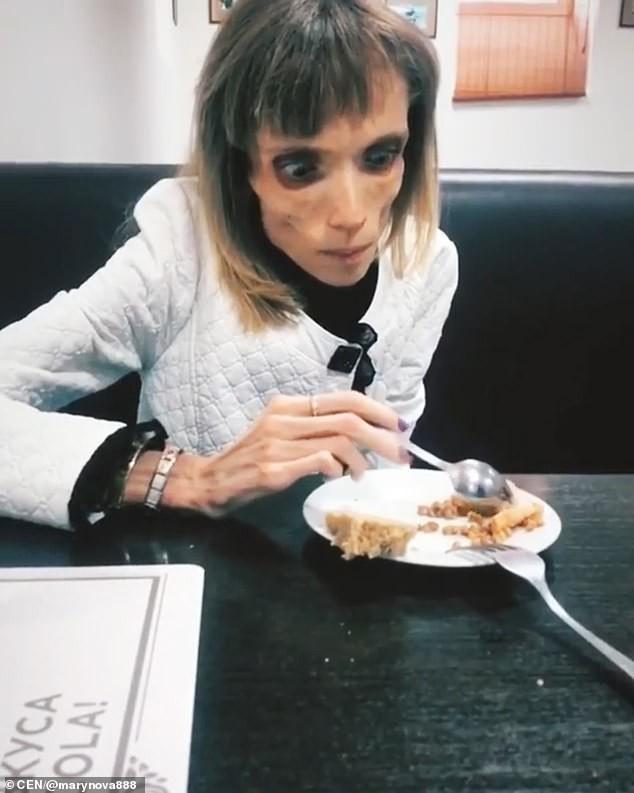 Thực hiện chế độ ăn kiêng nghiêm ngặt trong nhiều năm, cô gái 26 tuổi chỉ nặng vỏn vẹn có 17kg, cơ thể chỉ còn lại da bọc xương - Ảnh 3.