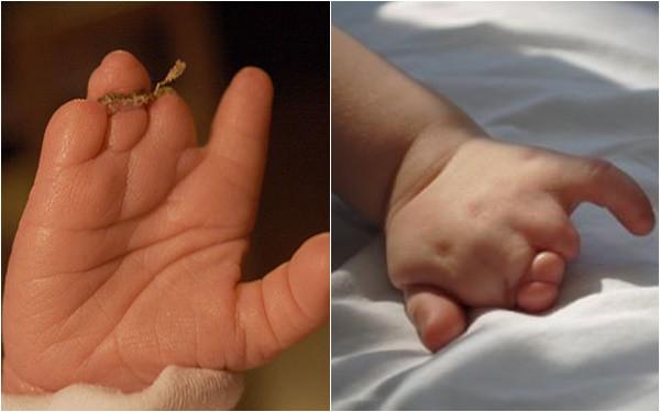 Mẹ lặng người khi sinh con ra không có bàn tay, bác sĩ mổ tìm thấy 1 bàn tay bé xíu còn nằm trong tử cung - Ảnh 5.