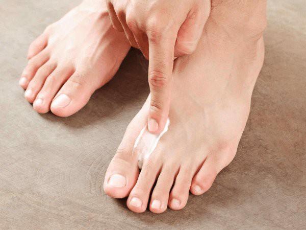 Căn bệnh phiền toái dễ tìm đến bạn khi trời mưa này, hãy cẩn trọng tránh rước họa vào thân - Ảnh 3.
