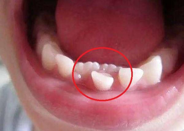 Cứ 10 trẻ thì có 5 trẻ bị hàm răng đôi do thói quen chiều con khi ăn của  cha mẹ