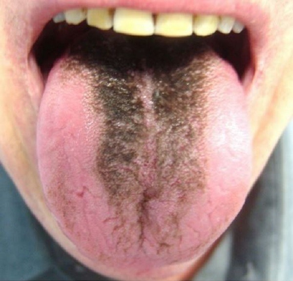 """Người phụ nữ có lưỡi đen sì vì """"mọc lông"""": Chuyên gia cảnh báo thói quen mà nhiều người không để ý cũng là nguyên nhân gây bệnh - Ảnh 2."""