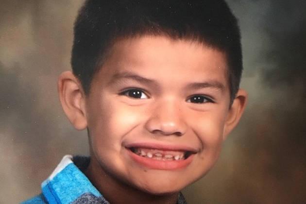 Biến chứng nguy hiểm của bệnh cúm có thể lấy đi mạng sống như trường hợp bé 7 tuổi này - Ảnh 1.