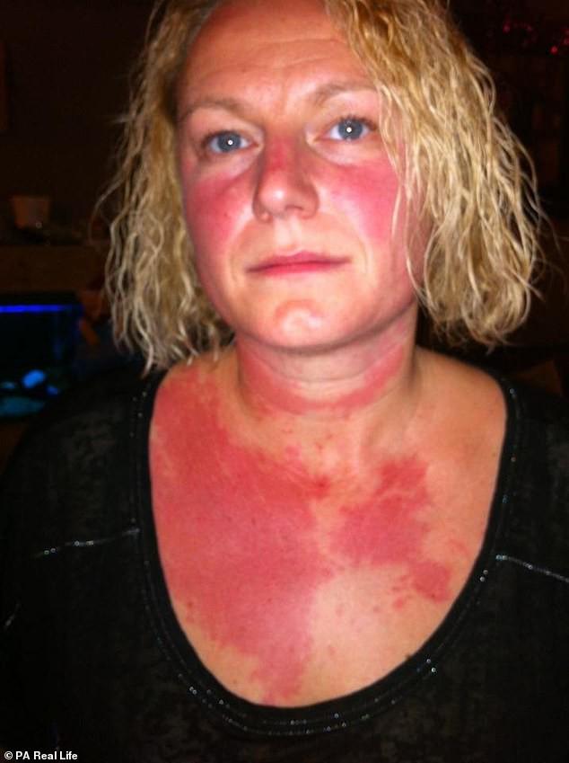 Người phụ nữ 42 tuổi bị dị ứng khiến ai nhìn cũng khiếp sợ chỉ vì có thói quen này vào buổi đêm - Ảnh 1.