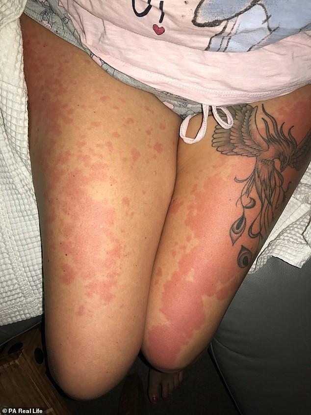 Người phụ nữ 42 tuổi bị dị ứng khiến ai nhìn cũng khiếp sợ chỉ vì có thói quen này vào buổi đêm - Ảnh 3.