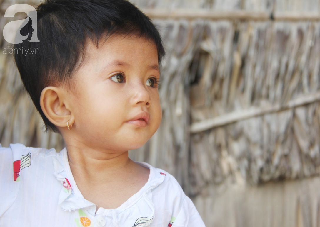 Phép màu đến với bé gái 2 tuổi bị hở van tim, chỉ nặng 6 ký mà mẹ nghèo không có tiền chữa trị - Ảnh 1.