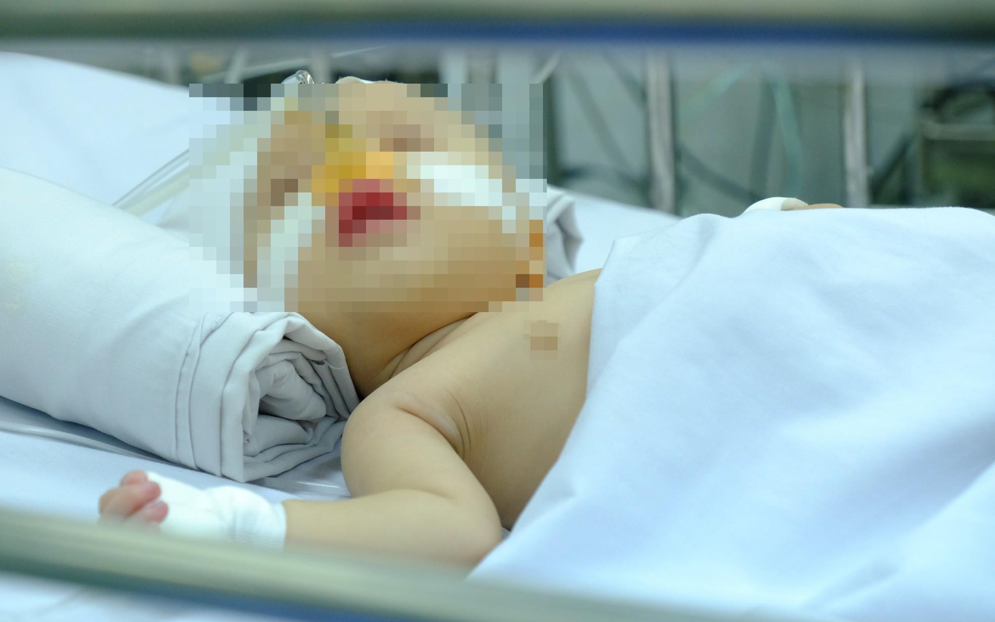 """Bệnh nhi vừa chào đời đã mắc bệnh tim, bác sĩ phát hiện và phẫu thuật ngay giúp bé """"từ cõi chết trở về"""""""