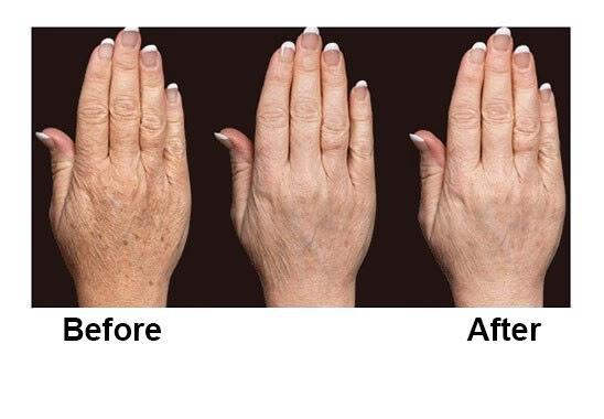 Trẻ hóa da, nâng cơ với công nghệ HIFU, Ultherapy và Thermage FLX của Vian Beauty - Ảnh 2.