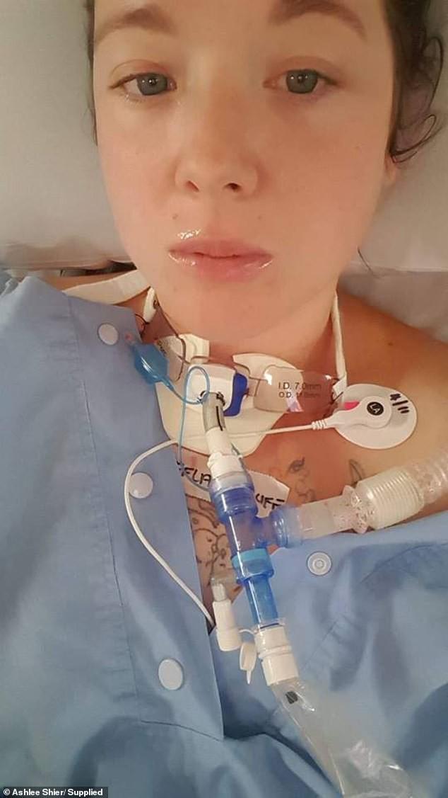 Mẹ bầu 7 tháng bị dao đâm vào chính họng bởi tai nạn nhiều người có thể mắc phải  - Ảnh 3.