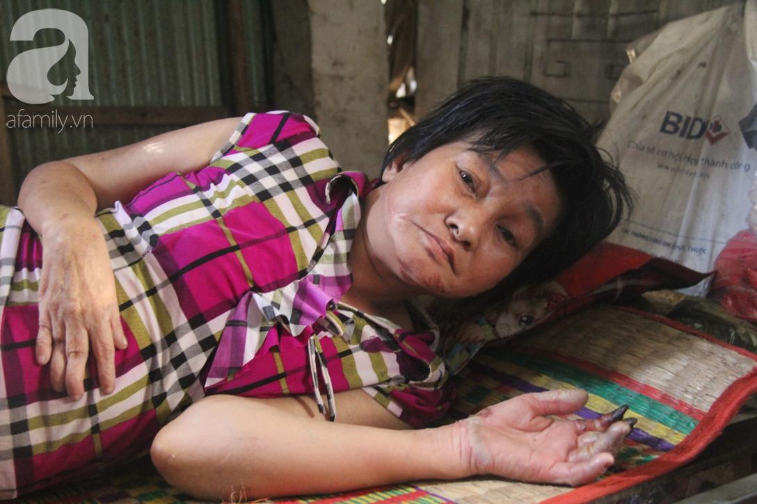 Người cha già còng lưng chăm con gái bệnh tật: Cuối đời, tôi mới được ăn một bữa cơm ngon - Ảnh 5.