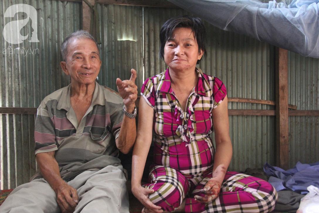 Người cha già còng lưng chăm con gái bệnh tật: Cuối đời, tôi mới được ăn một bữa cơm ngon - Ảnh 10.