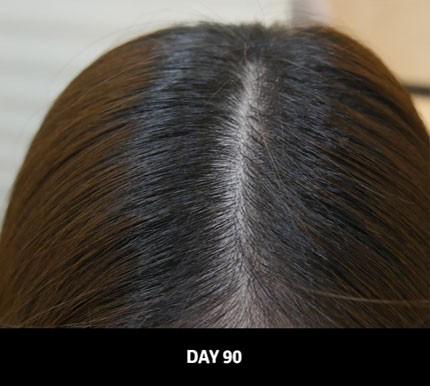 """Cứ 1 giây lại bán được 1 sản phẩm, dầu gội này chính là """"cứu tinh"""" giải quyết tình trạng tóc rụng của phụ nữ Nhật - Ảnh 6."""