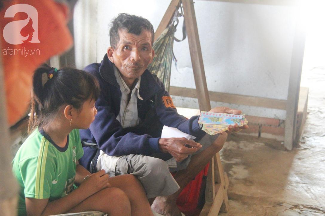 Bố bị chấn thương sọ não, con trai mù 6 tuổi gục đầu lên vai mẹ, ú ớ lấy lá dừa, hốt cát để ăn - Ảnh 14.