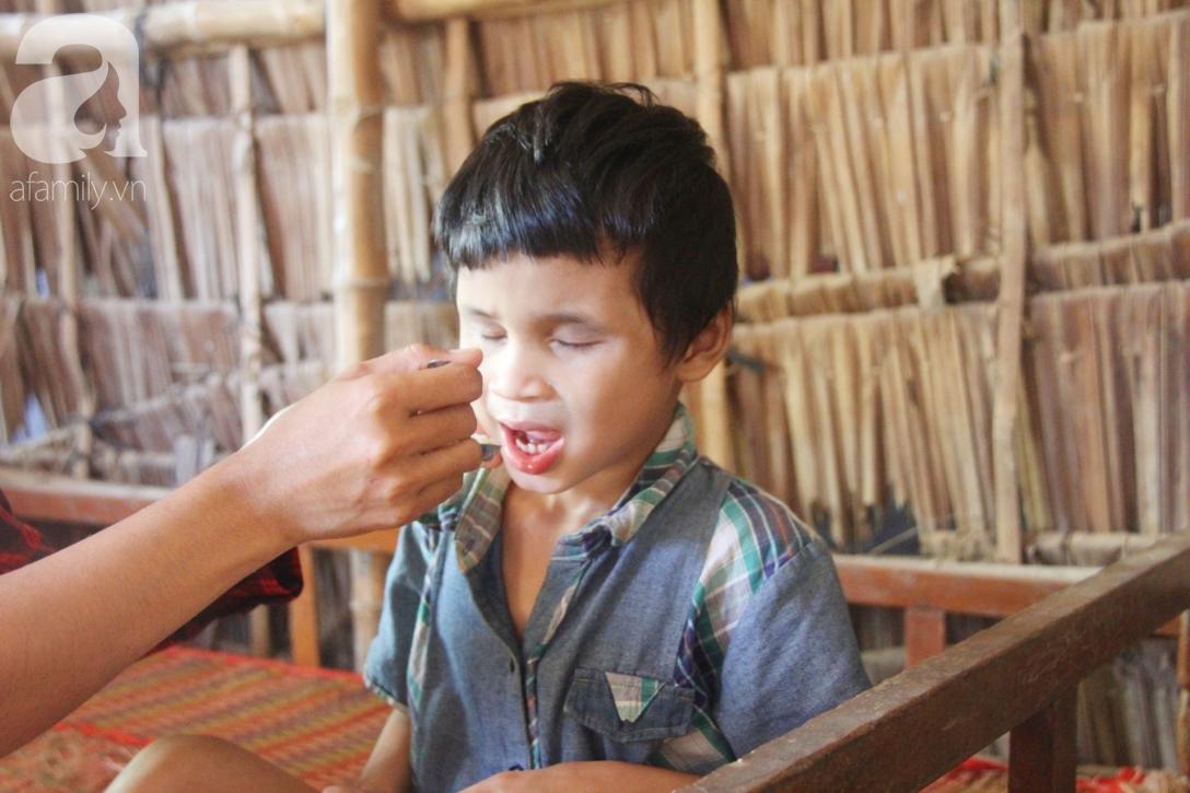Bố bị chấn thương sọ não, con trai mù 6 tuổi gục đầu lên vai mẹ, ú ớ lấy lá dừa, hốt cát để ăn - Ảnh 6.