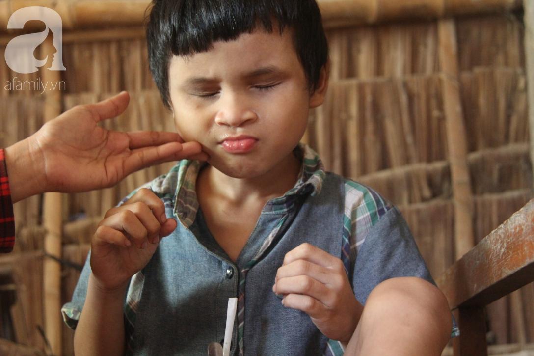 Nụ cười hạnh phúc của bé trai 6 tuổi mù lòa bên người bố tật nguyền mà mẹ không có tiền chữa trị - Ảnh 8.