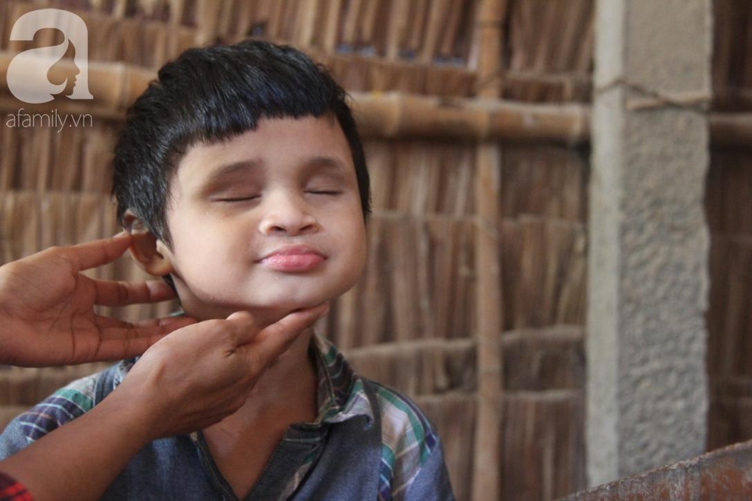 Nụ cười hạnh phúc của bé trai 6 tuổi mù lòa bên người bố tật nguyền mà mẹ không có tiền chữa trị - Ảnh 1.