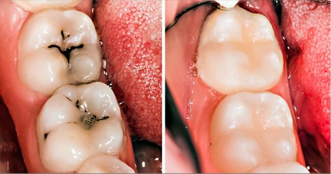 7 cách đơn giản ngăn ngừa sâu răng mà không phải ai cũng biết - Ảnh 6.