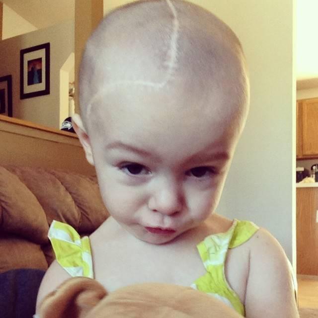 Thấy phần thóp trên đầu con trông bất thường, mẹ lo lắng và đành bất lực chấp nhận sự thật đau lòng đằng sau đấy - Ảnh 5.