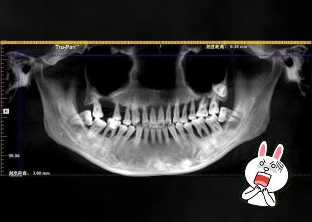Đang đánh răng thì đột nhiên 1 chiếc răng rơi xuống, cô gái 28 tuổi phải nhổ bỏ hàm trên vì bệnh nguy hiểm - Ảnh 1.